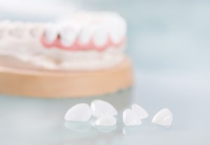 We provide dental veneers services in woombye
